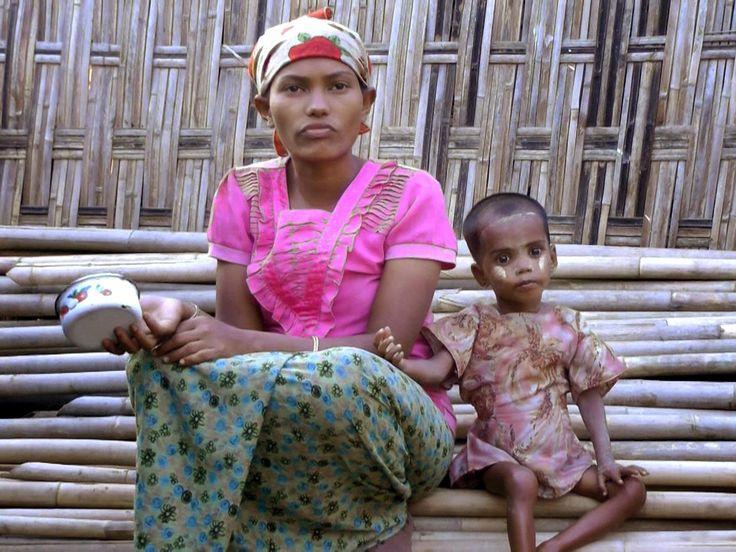 Four-year-old Rohingya Muslim girl born in Burma refugee camp so malnourished she 'cannot grow'