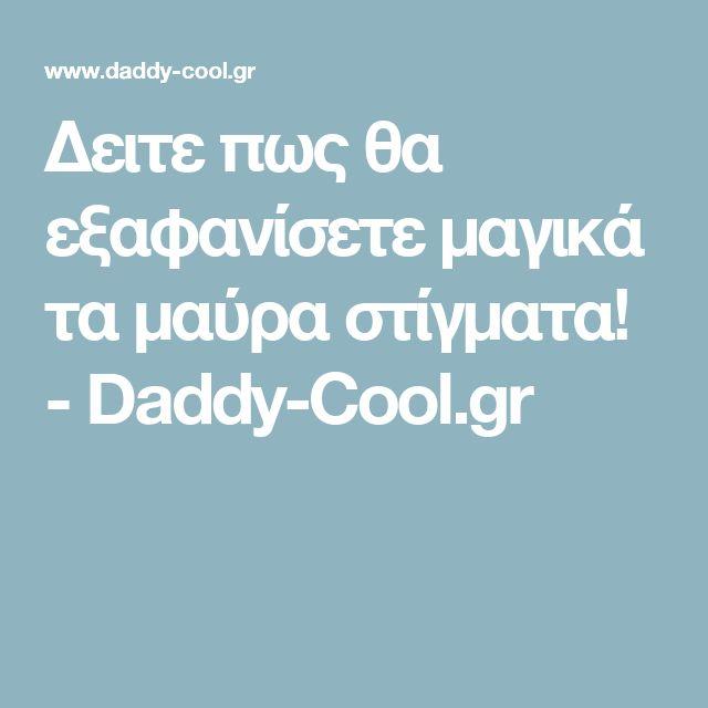 Δειτε πως θα εξαφανίσετε μαγικά τα μαύρα στίγματα! - Daddy-Cool.gr