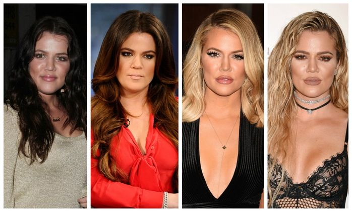 Khloe Kardashian Plastic Surgery Before And After Photos