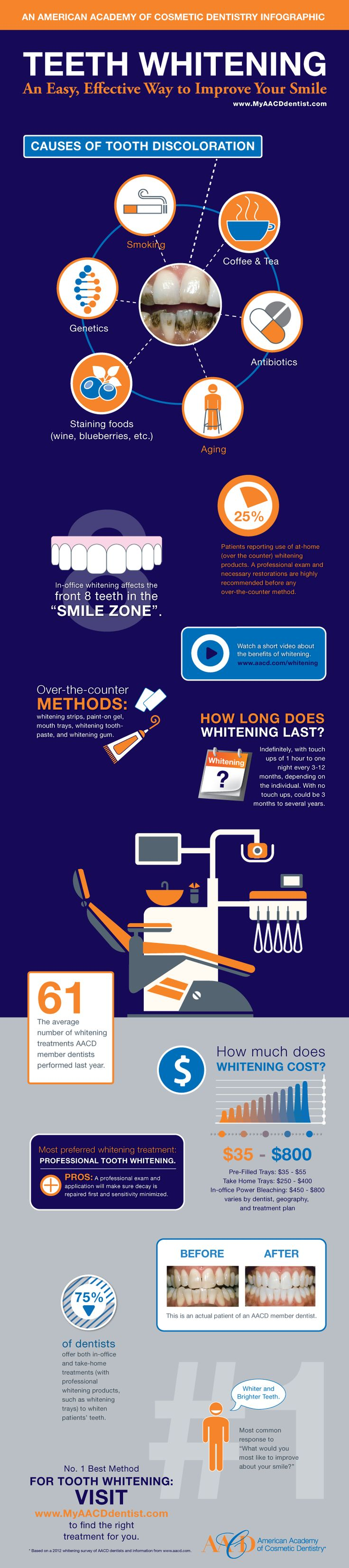 Teeth whitening in Boston and Newton , MA by Boston's Top Cosmetic Dentist, Dr. Anna Berik