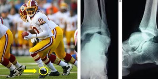 Robert Griffin III suffered an ankle #injury during the #WashingtonRedskins matchup against the #JacksonvilleJaguars. #RGIII will not require surgery, but will miss several weeks on the field while he recovers from a dislocated ankle. Check out more #sportsinjuries in the #NFL at http://insideinjuries.com/category/football/.