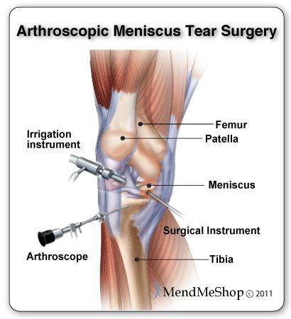 Arthroscopic meniscus surgery trims meniscus tears