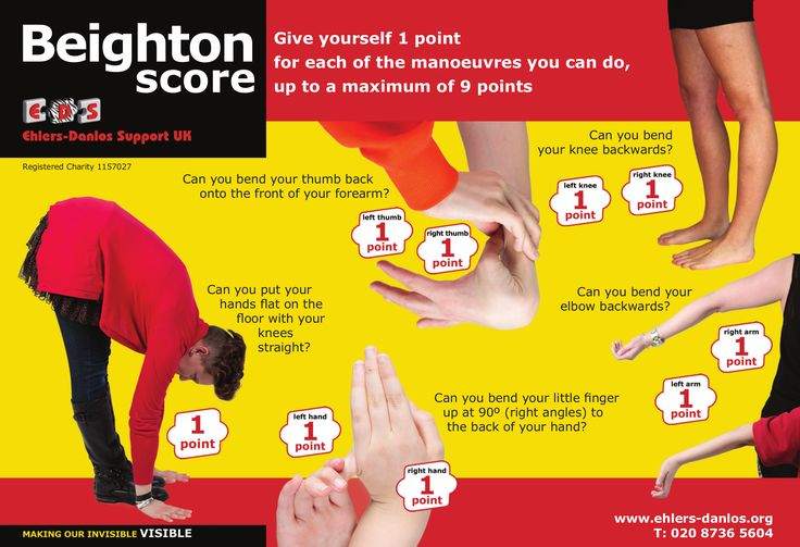 The Beighton Scale is used to identify Hypermobility. A positive Beighton score does not necessarily mean you have EDS-HT. One point is given for each of the following joints, with a total score of 9 points. Where the joint is bilateral, there is one point for each side.