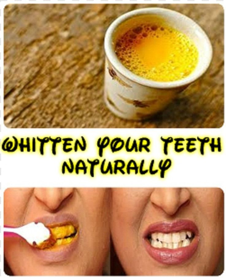 Turmeric is the most effective natural teeth whitening ingredient, which in addition has other qualities: it is a powerful antimicrobial and kills the bacteria that lead to tooth decay or gum disease to develop different. The yellow powder stain almost anything ingredient makes your teeth the whitest possible.