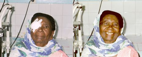 La cataracte - O.P.C.   Organisation pour la Prévention de la Cécité   Préserver la vue
