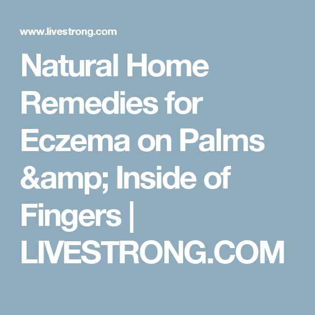 Eczema On Palms Natural Treatment