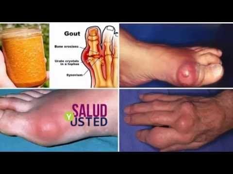 Ácido úrico, gota, ¿cómo curar la gota? | Explicación sencilla y tratamient - YouTube