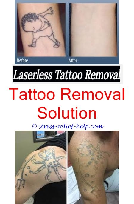 Tattoo Removal Tattoo Removal Laser Tattoo And Large Tattoos