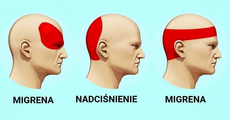 Kiedy masz silny ból głowy a nie masz żadnej tabletki pod ręką, sytuacja zaczyna być beznadziejna. Ale czy na pewno? Okazuje się że istnieje naukowa metoda na pozbycie się bólu głowy zwana akupresurą. Chcemy dzisiaj podzielić się z Wami informacjami na jej temat abyście mogły pozbywać się bólów głowy efektywnie i szybko.  Akupresura to …
