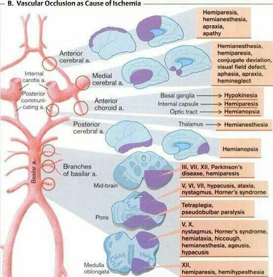 63 Best Neurology Images On Pinterest