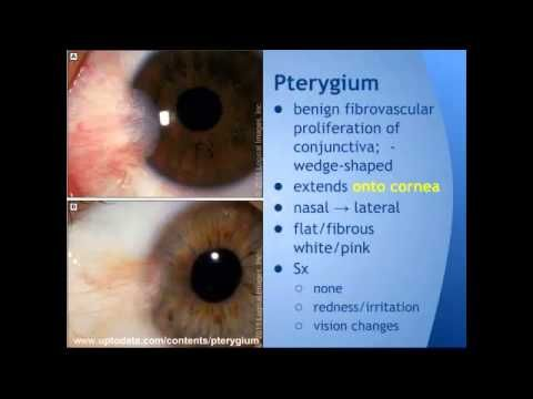 10 best pinguecula images on pinterest | medicine, disorders and, Skeleton