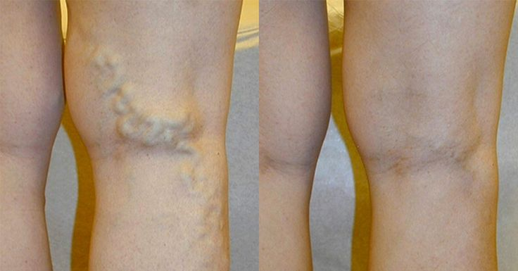 Varicose veins are not only unsightly, can be painful and trigger further health problems. Find out some simple and safe natural remedies.