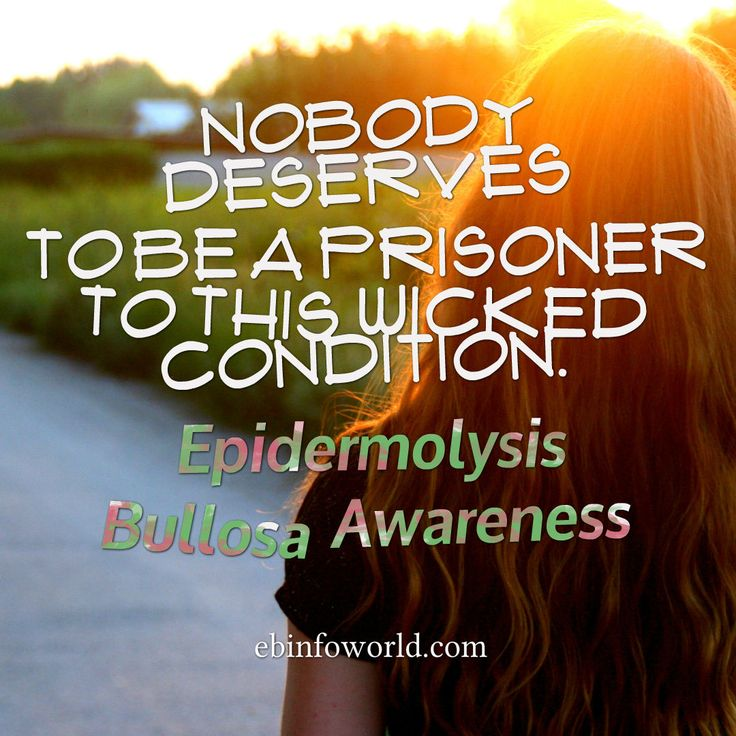 Nobody deserves to be a prisoner to this wicked condition. Epidermolysis Bullosa Awareness ebinfoworld.com