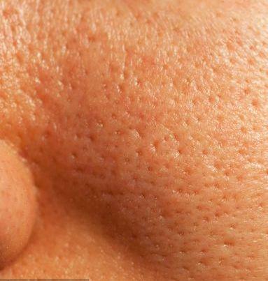 Tips de Belleza para Reducir los Poros Abiertos de la Cara por maquillajebellezamujer.blogspot.com