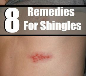 Shingles is caused due to a viral attack that can cause rash or blisters on the skin. Shingles can cause itching or pain in some cases. Shingles pain can be worse in some cases. It generally happens a