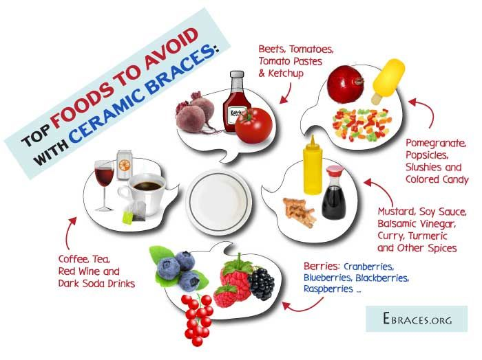 Foods that can stain teeth and braces: http://ebraces.org/ceramic-braces-staining/