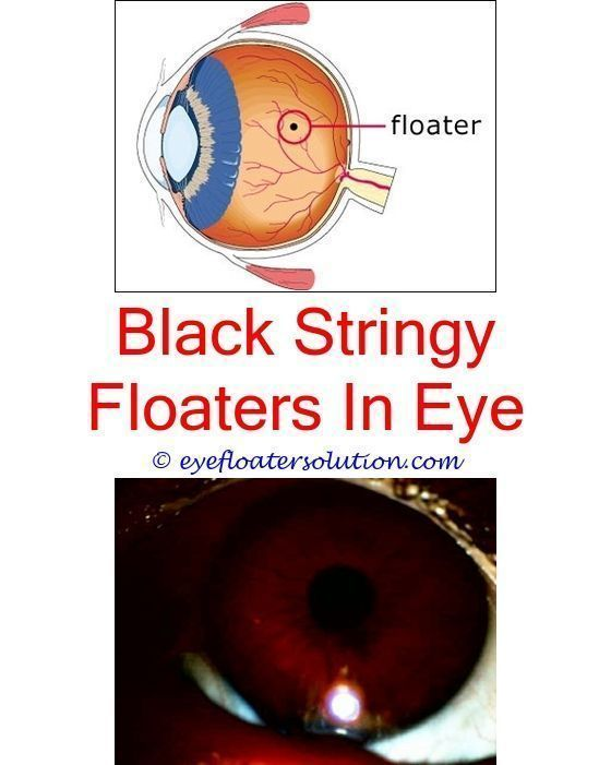 what can be done about floaters in your eyes - transient ischemic attack eye floaters.what causes floaters in both eyes i have a lot of floaters in my eyes floaters in eyes laser treatment 8020562386 #EyeFloatersCauses