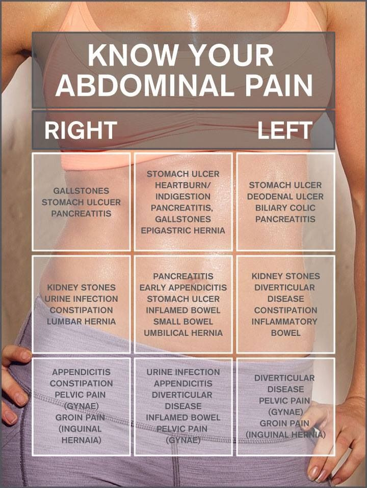 Image for Stomach pain chart