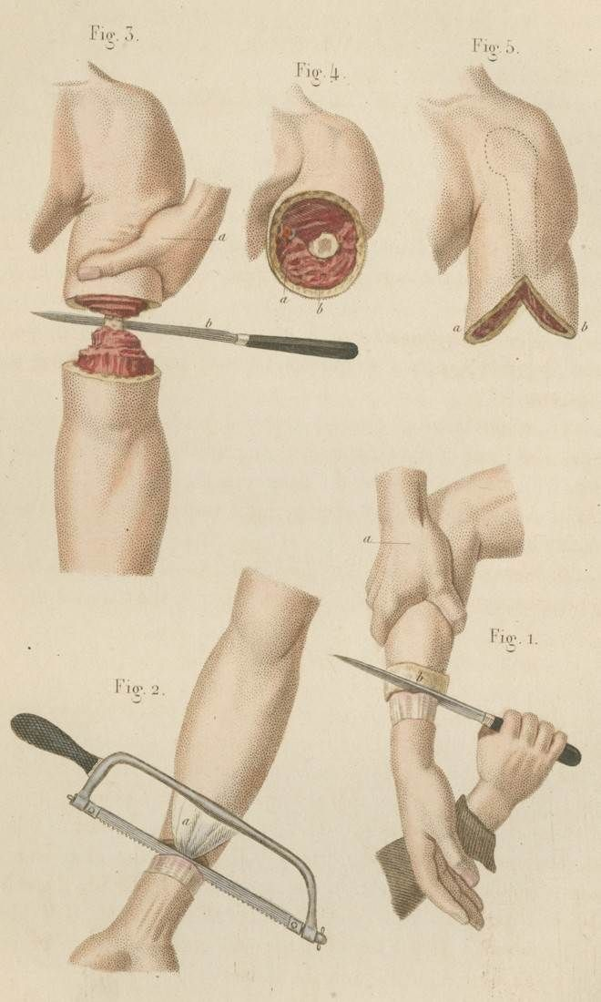 Arm amputation methods, from Claude Bernard, Illustrated Manual of Operative Surgery and Surgical Anatomy (New York, 1864).