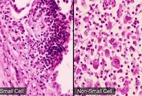 A micrograph of two small cell lung cancer and non-small cell lung cancer.