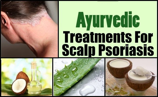 Psoriasis Revolution - Scalp psoriasis treatment is found in flowers as well as through other natural medicines. Herbal Remedies like Neem have proved to be very effective herbal remedy for psoriasis. It has been proving successful in treatment of psoriasis without causing any side effects. - REAL PEOPLE. REAL RESULTS 160,000+ Psoriasis Free Customers
