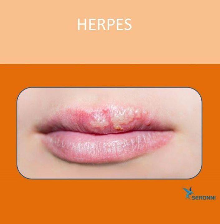 O Herpes Labial  é uma infecção viral muito comum causada pelo VÍRUS Herpes Simples tipo 1. Até 90% da população já teve algum contato com este vírus mas 1/3 das pessoas desenvolvem os sintomas. A doença é CONTAGIOSA e a transmissão ocorre pelo contato direto com a lesão ou saliva. Beijar usar batons e compartilhar copos podem transmitir a doença.  Apesar de não ser o mais comum este vírus também pode acometer a região genital. O quadro geralmente dura 7-10 dias e caracteriza-se por dor…