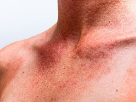 Sun poisoning can be referred to as a skin related problem that is caused by the excess exposure to sun. When the harmful Ultra Violet Rays reach your skin pores it provides many discomforts and irritation to your skin. Basically the common symptoms of the sun poisoning are the skin irritation, itching on skin, dryness, […]
