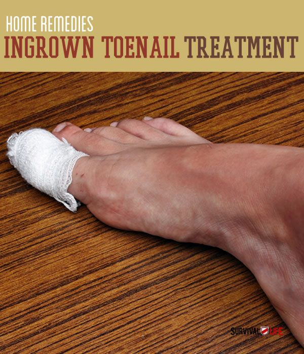 Ingrown Toenail Treatment   Home Remedies   Survival Life - not for the squeamish!!