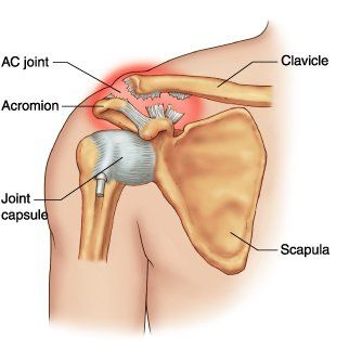 Acromioclavicular Joint Injury (Shoulder Separation) Just found out what's wrong with my shoulder! My RA and osteoarthritis are eating away at my joints