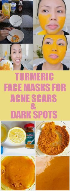 6 Best DIY Homemade Face Mask for Acne Scars and Dark Spots