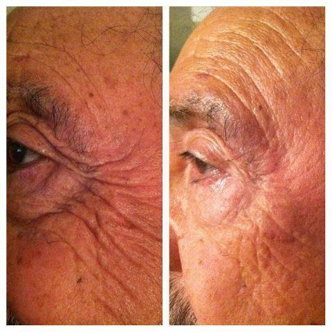 DO YOU PLAY GOLF, TENNIS OR any outdoor sports?  Then you will love Nerium. This is one product you put on at night and wash off in the morning. LOOK at this man's Real Results! Order today and get a $30 Preferred customer discount with a 30 day money back guarantee. CLICK HERE http://www.nerium.com/Customers.aspx?ID=yourrealresults OR CALL ME DIRECT 330-635-1228