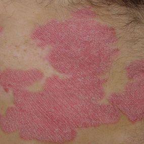 13 Photos of Plaque Psoriasis