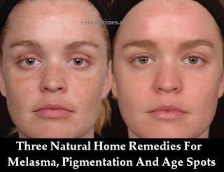 three natural home remedies for melasma pigmentation and age spots face masks pinterest. Black Bedroom Furniture Sets. Home Design Ideas