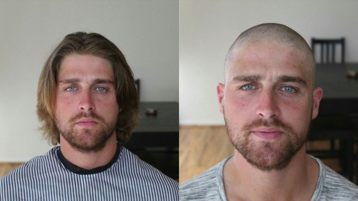 Pin By Robert Vallerini On Shaved Head Hair System Hair Replacement Systems Before And After Haircut