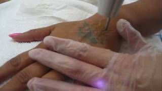 Houston Laser Tattoo Removal photos