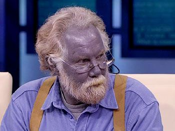 Redhead man turned blue colloidal silver