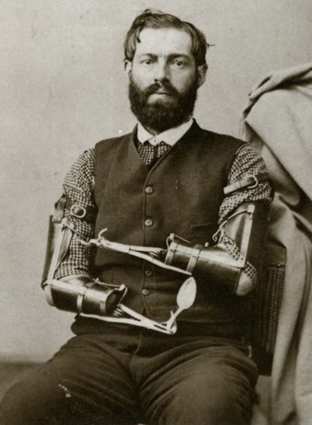 This Civil War vet, Samuel Decker, made his own metal prosthetics. This is presumably his dining set.