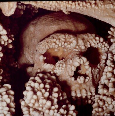 The so-called Man of Altamura, whole and intact skeleton of an adult male of Homo neanderthalensis found embedded in limestone concretions of a cave in the countryside in Altamura, Italy. Perhaps the man, who lived in a period between 50,000 and 65,000 years ago, accidentally fell through a sinkhole in the karst cave and died of his wounds or broken bones.