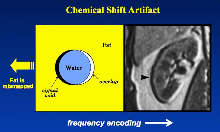 Chemical shift artifact.