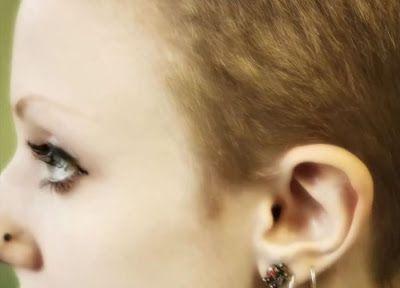 melynda moon chirurgie pour avoir des oreilles d elfe 7   Melynda Moon   de la chirurgie pour avoir des oreilles dElfe   Seigneur des Anneau...