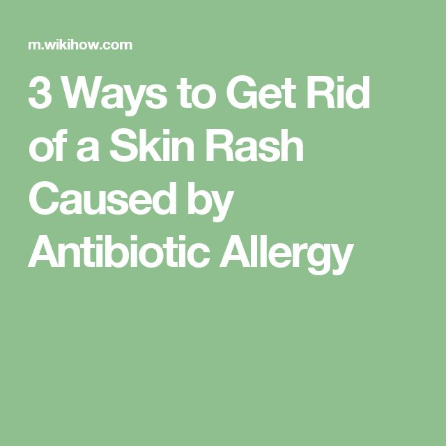 25+ best ideas about Rash causes on Pinterest