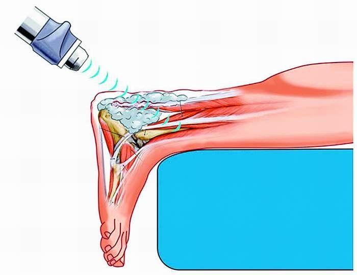 Fala uderzeniowa w Szczecinie Co to jest Terapia Falą Uderzeniową? Fala uderzeniowa jest akustyczną falą przenoszącą energie w bolące miejsca. Dzięki dostarczonej energii następują procesy leczenia i regeneracji ścięgien i tkanek miękkich. Posiadamy najnowocześniejszy z dostępnych na rynku aparat do zwalczania przewlekłego bólu związanego z układem mięśniowo-szkieletowym.