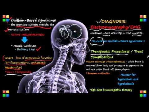 NCLEX Review on Guillain-Barre Syndrome