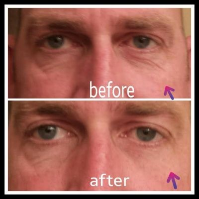 #instantlyageless  Instantly Ageless before and after
