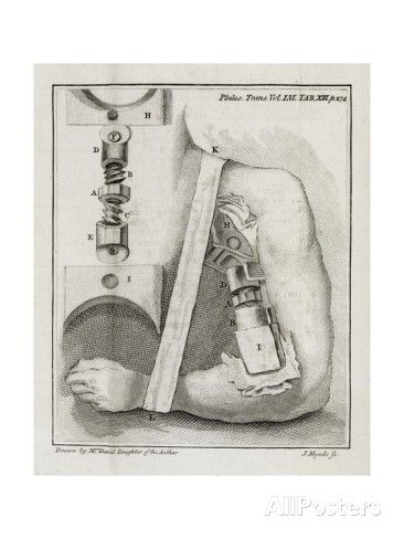 Bone-setting Mechanism, 18th Century Giclee Print by Middle Temple Library - AllPosters.co.uk