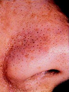 black-dots-on-nose.jpg (225×300)