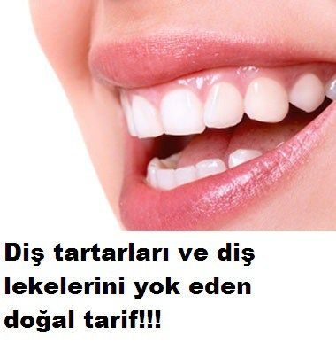 Diş eti tartarları ve diş lekelerini gideren doğal tarif