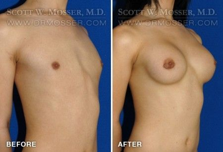 from Jamarion online hormone injections for transgenders
