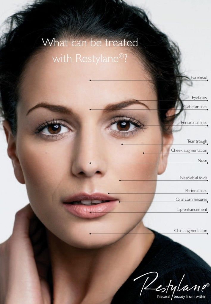 Restylane dermal fillers are an injectable treatment that contains hyaluronic acid. Youthful skin is rich in hyaluronic acid (HA) – a substance that binds water, hydrates the skin, and promotes all-important softness and fullness. With age, the skin's HA gradually becomes less efficient and leads to loss of volume and signs of aging.