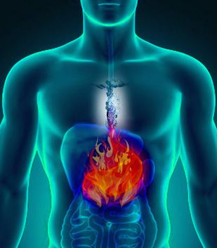 In cases like heart burn, gastric reflux or indigestion, it is usually automatically assumed that the patient must have too much acid in the stomach. Too much acid is correct. But the real question…